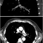 CT scan of pulmonary embolism