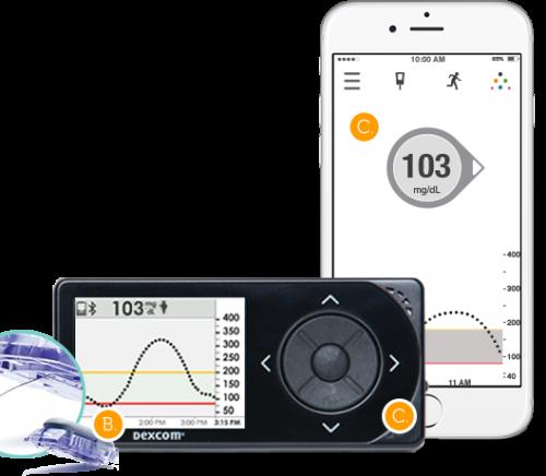 Dexcom 5 Continuous Glucose Monitoring system